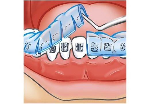memosil-orthodontology-8-image-640w-360h